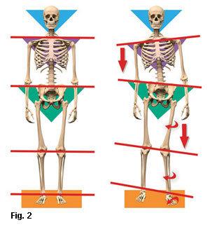 Anatómiailag helyes és helytelen struktúra