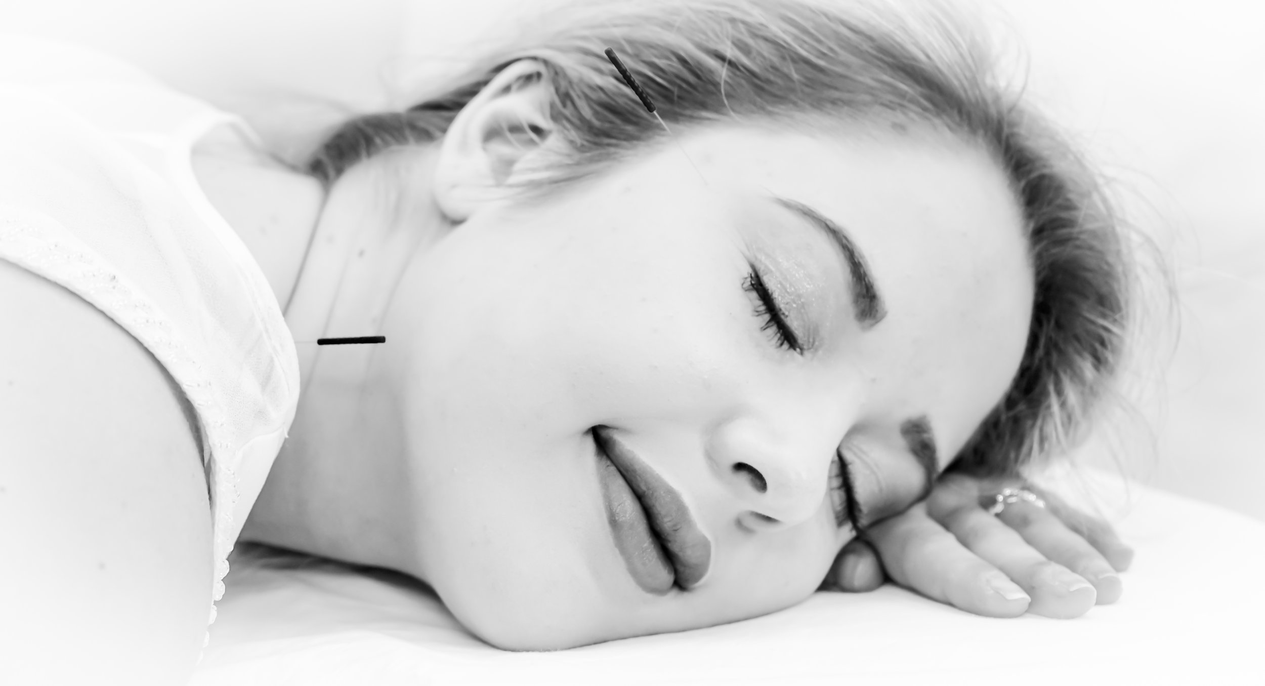 This patient is relaxing with two needles in her face this calming treatment