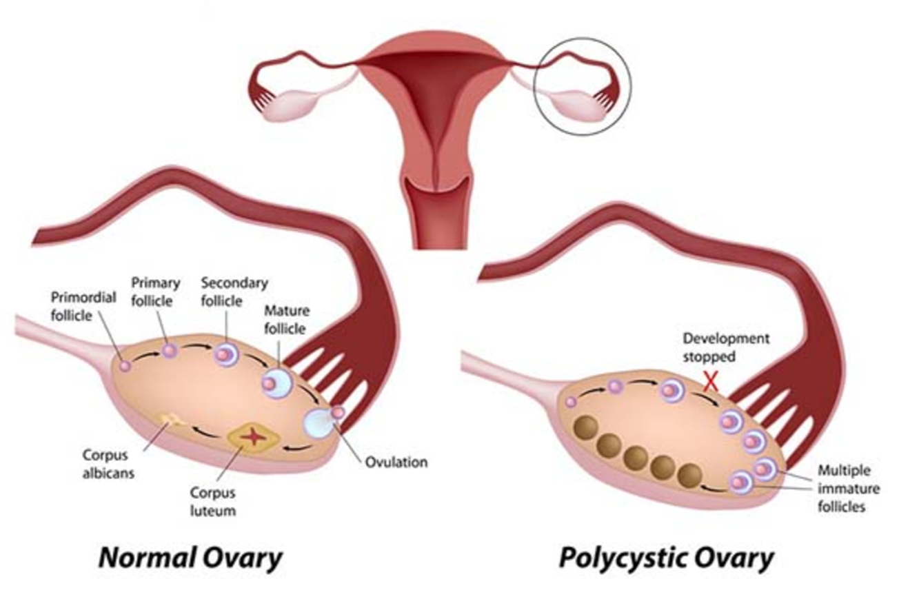 The differences between a normal ovary and infected with Polycystic Ovary Syndrome (PCOS)