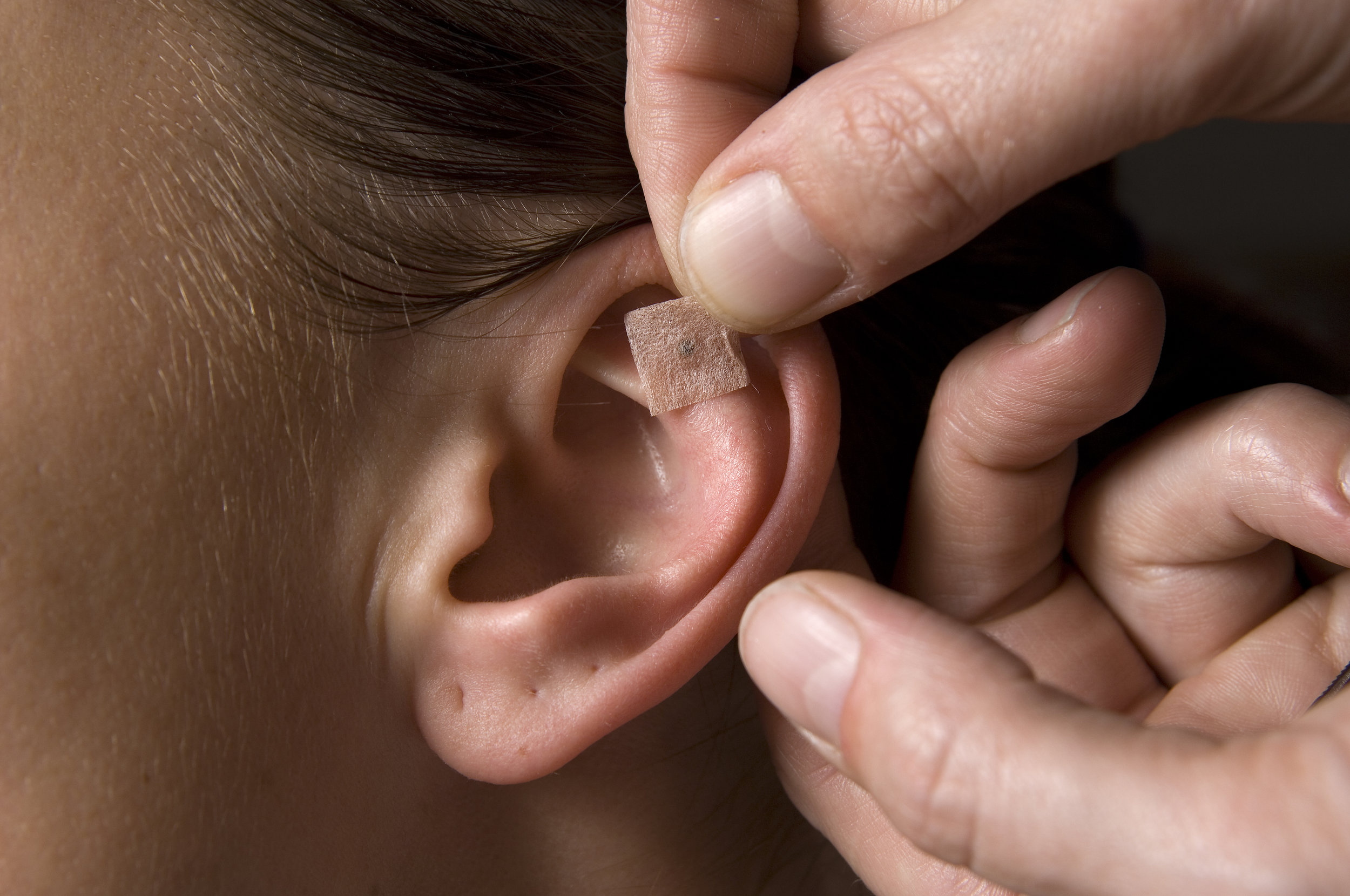 auricular-acupuncture.jpg