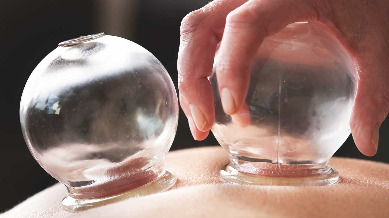 cupping-detail.jpg