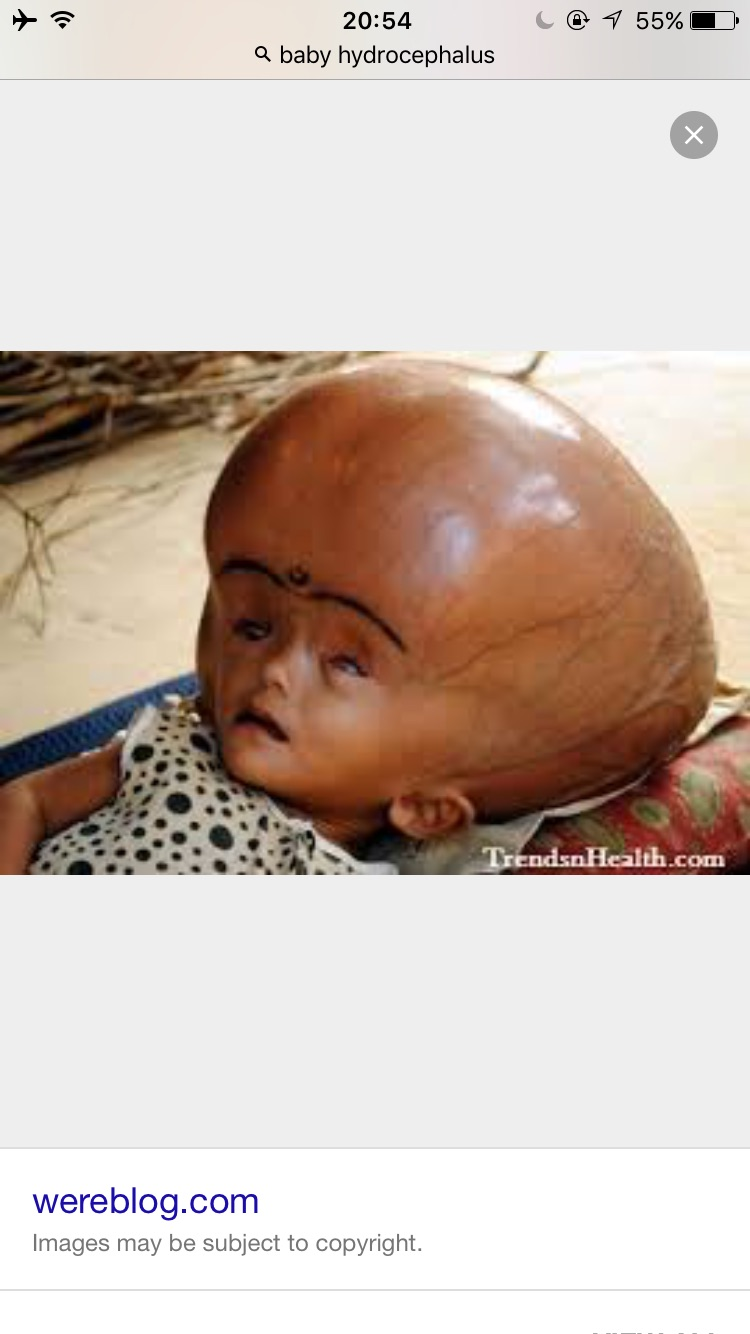 Example of hydrocephalus