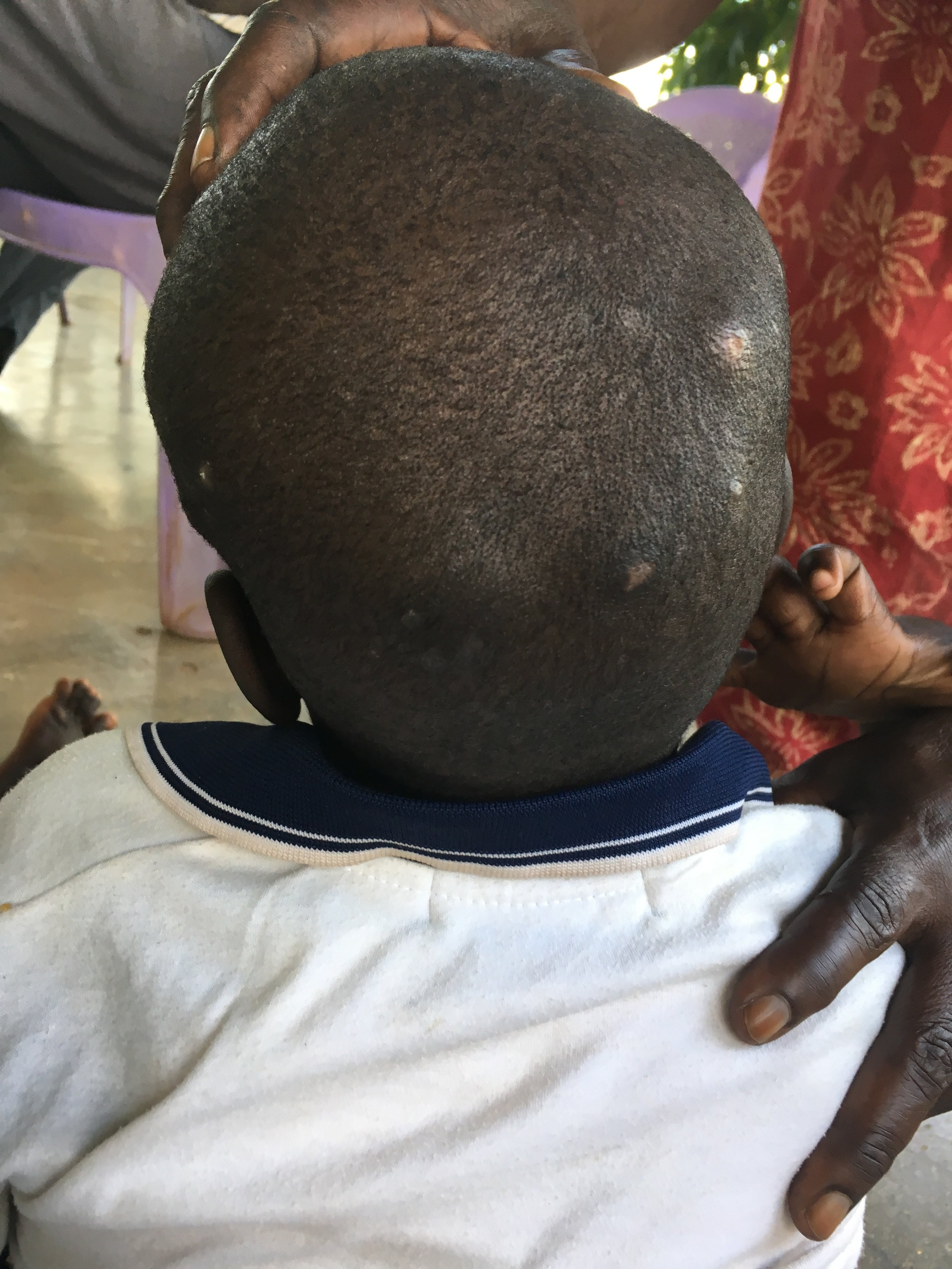 These sores and his severe atrophy are a direct result of being bed-ridden without a personal caregiver. We pray that we are able to give Jesus the 24 hour attention he deserves.