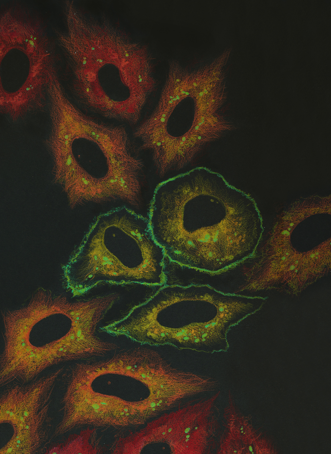 - Exploring the interactions between tumor suppressor genes, metabolism, and cell death in cancer