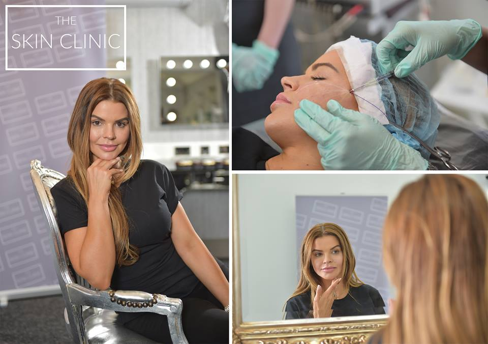 Tanya Bardo of The Housewives of Cheshire has had her PDO Thread Lift with our very own 'The Skin Clinic'