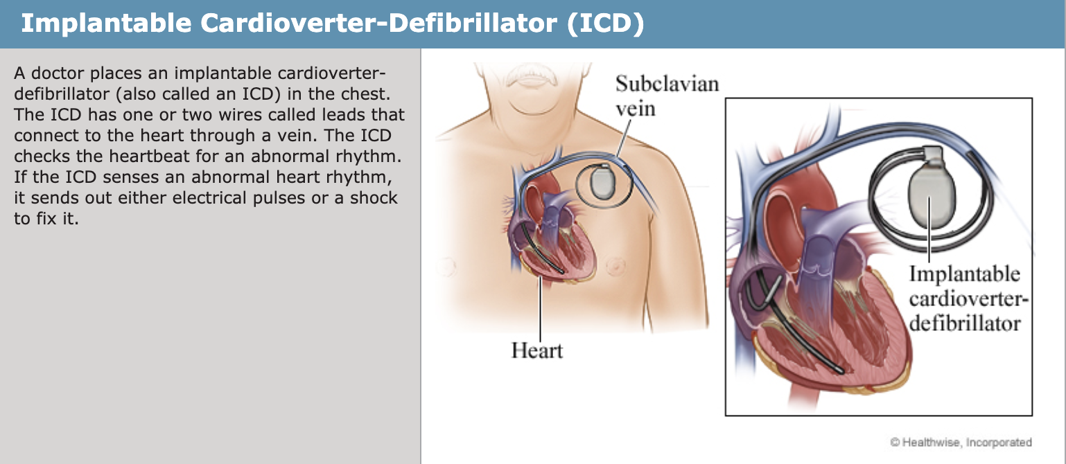 Implanted Devices — Northtowns Cardiology