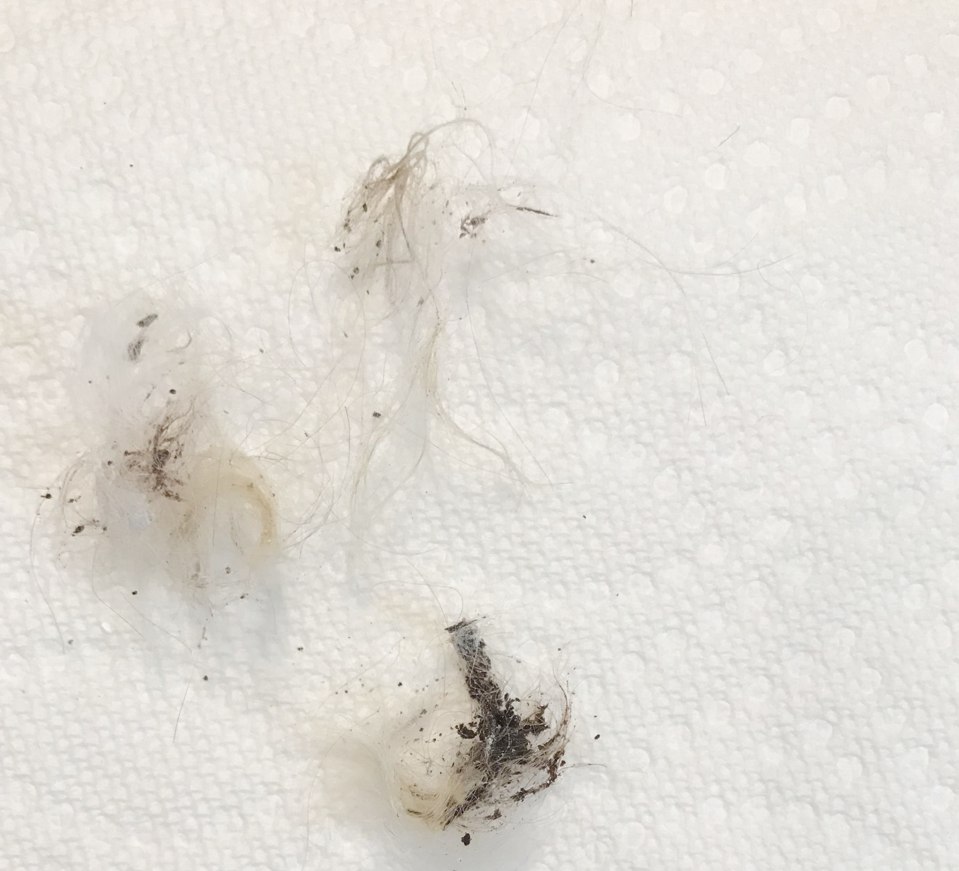 Plucked (removed) ear hair. - The darker and thicker piece was deeper within the ear canal. After removal, I was able to effectively clean the ears!