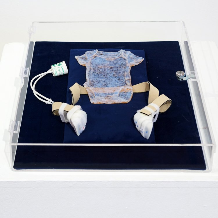 Jessica Witte.  Bull in a China Shop . Cast-glass preemie onesie with medical equipment (blood pressure cuff, neoprene straps, and orthotics) in a clear, locked velvet-lined cabinet (2013 - 2018).