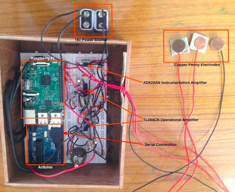 Figure 7: Hardware of Developed Device