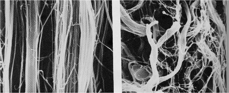 normal arrangement of collagen on left vs. disorganized collagen fibers on right