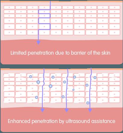 Ultrasound-For-Website1-2.png