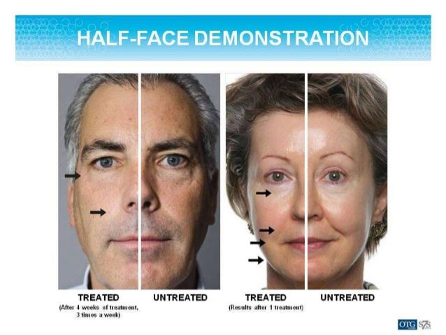half face.jpg