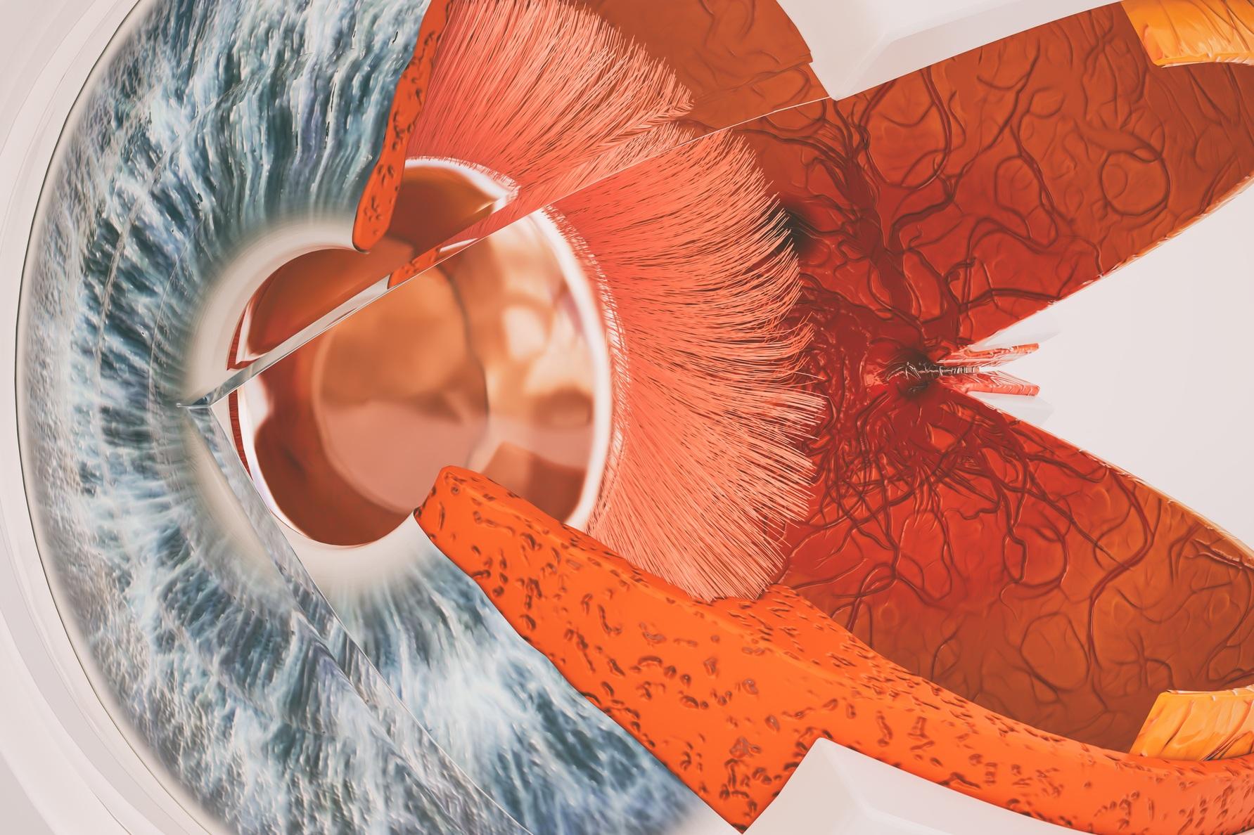 """網膜血管 - 増殖性糖尿病性網膜症""""糖尿病性網膜症(DR)は、糖尿病の一般的な微小血管合併症です。 糖尿病の世界的な罹患率の増加に伴い、DRは世界中で約420万人が罹患している視覚障害の主な原因です。 DRを有する40歳以上のアメリカ人の数は、2050年までに1600万人に達すると推定されており、視力を脅かす糖尿病性網膜症が推定340万人に影響を及ぼしている。 DRは、直接医療費が4億9200万ドルに達するという公衆衛生上の大きな負担であり、それに加えて、ケアを受けることに関連する時間と賃金が失われます。""""Diabetic Retinopathy. - Primary Care"""
