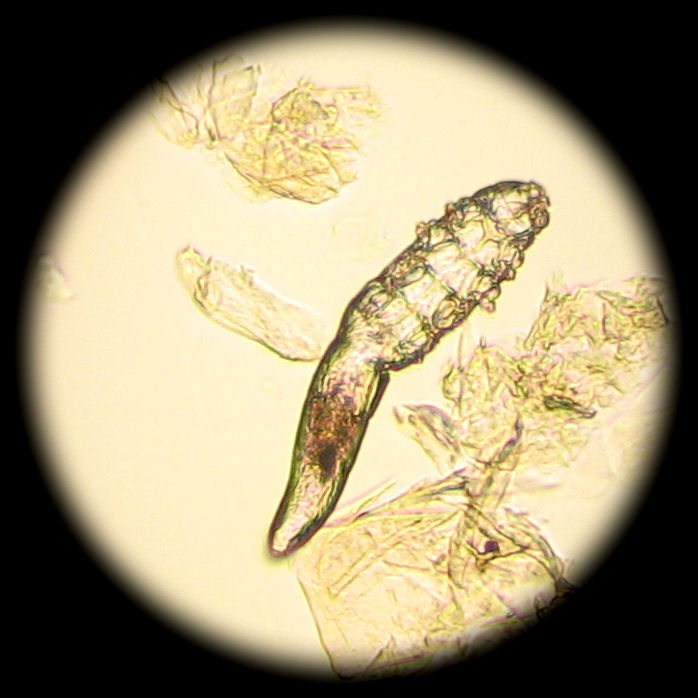 Demodex mites are microscopic, you will not be able to see them with the naked eye. From: http://www.petmd.com/sites/default/files/demodex_019.jpg