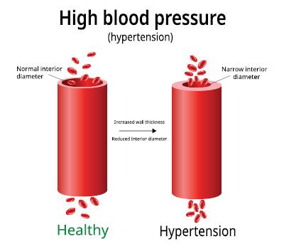high blood pressure visual.jpg