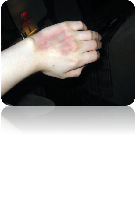 IVHand-bruise.png