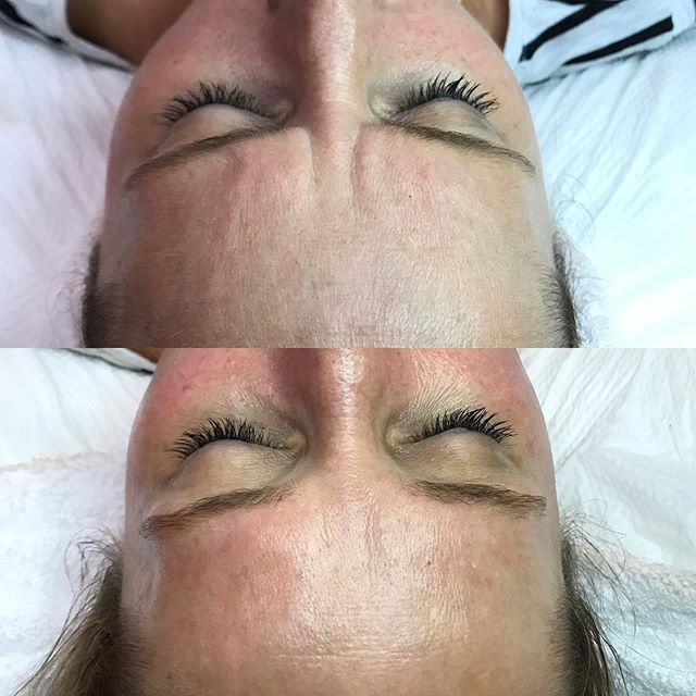 [ now you see them, now you don't! ] 👋🏻 bye bye pesky 11s! 👋🏻 dermaplane is just ONE of MANY of your @your_esti_bestie_ 's favorite non invasive reparative services! I love love LOVE working with my guests + learning about their lifestyle in order to get the results [+ relaxation] that meet their SKINdividual needs!