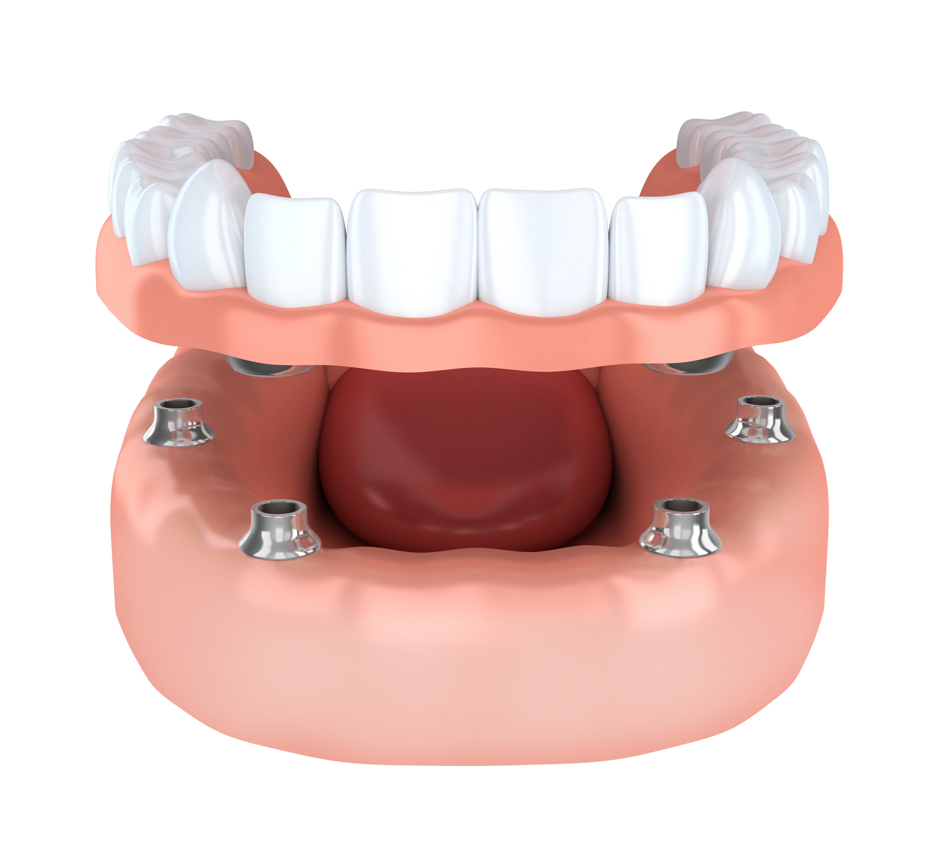 Watergate Dental offers implant-supported prosthetics