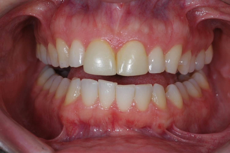 Veneers at Watergate Dental - Before
