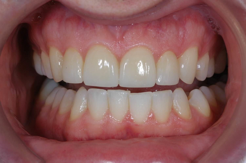 Veneers at Watergate Dental - After