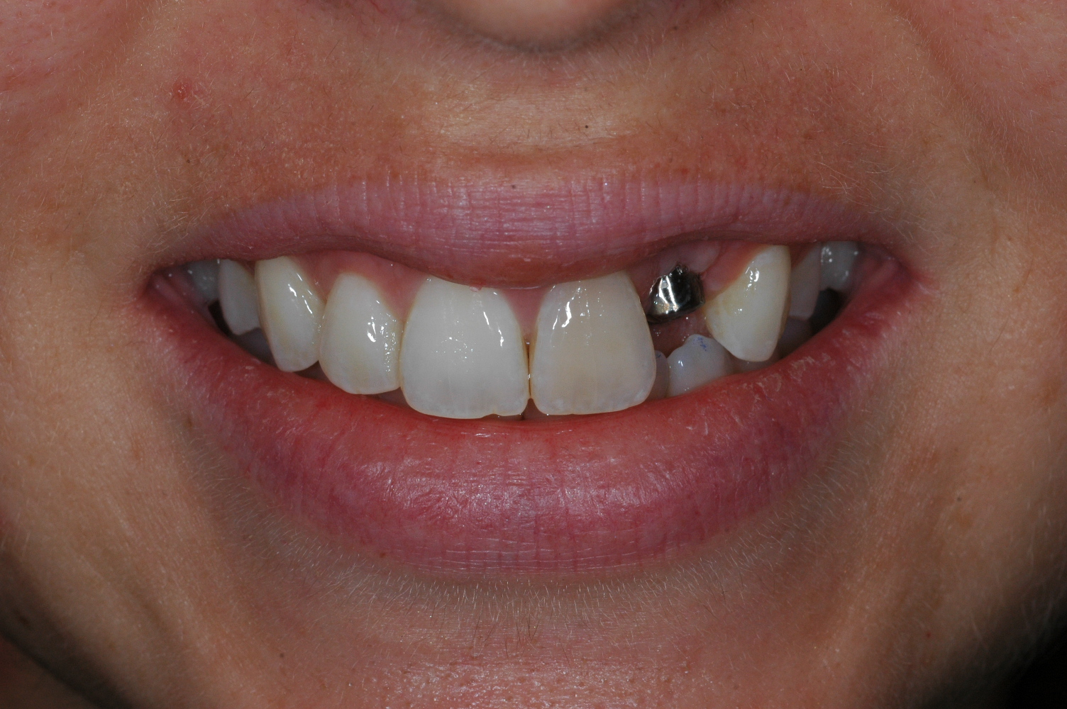 Front tooth implant at Watergate Dental - before