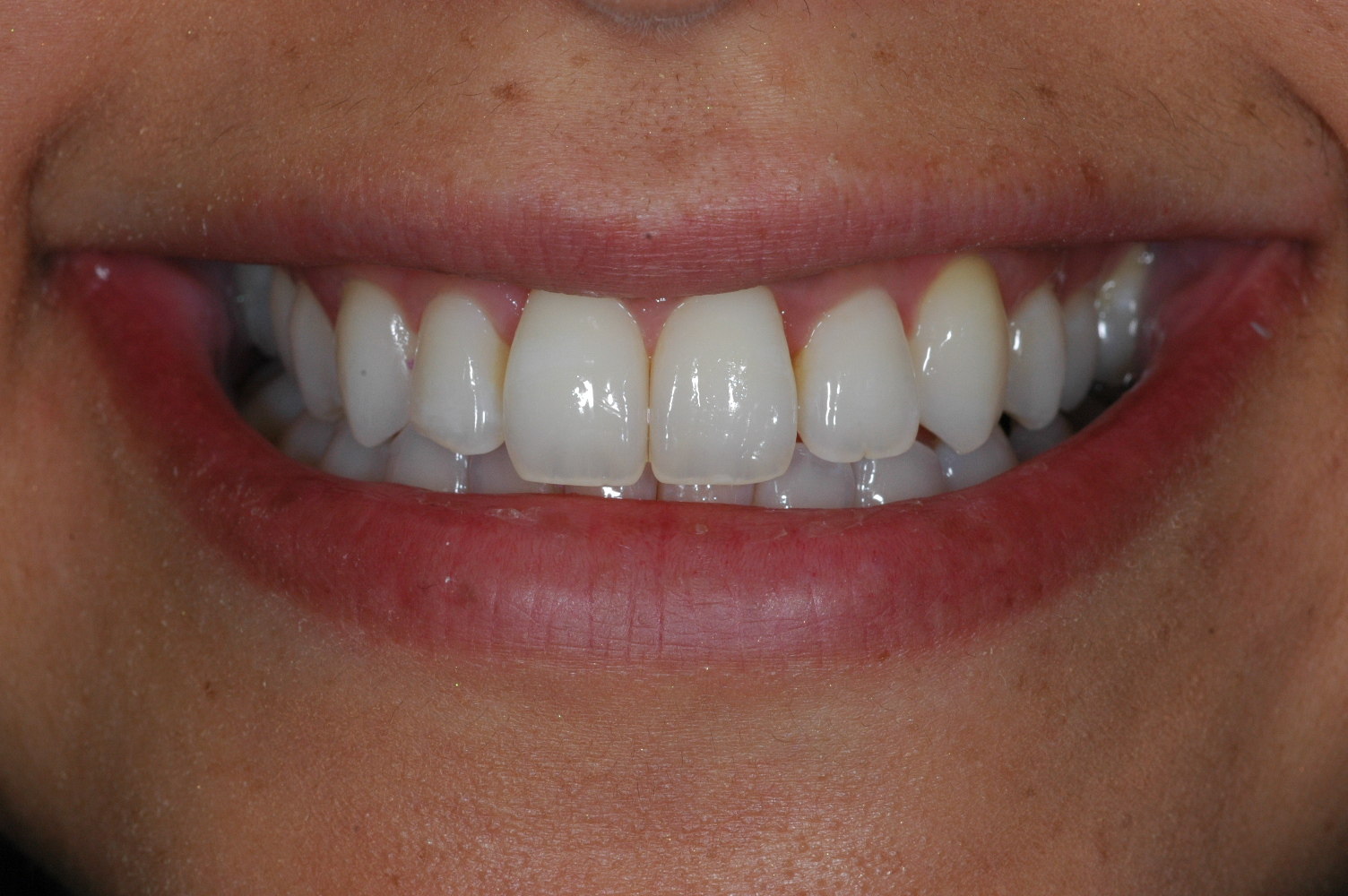Invisalign at Watergate Dental - After