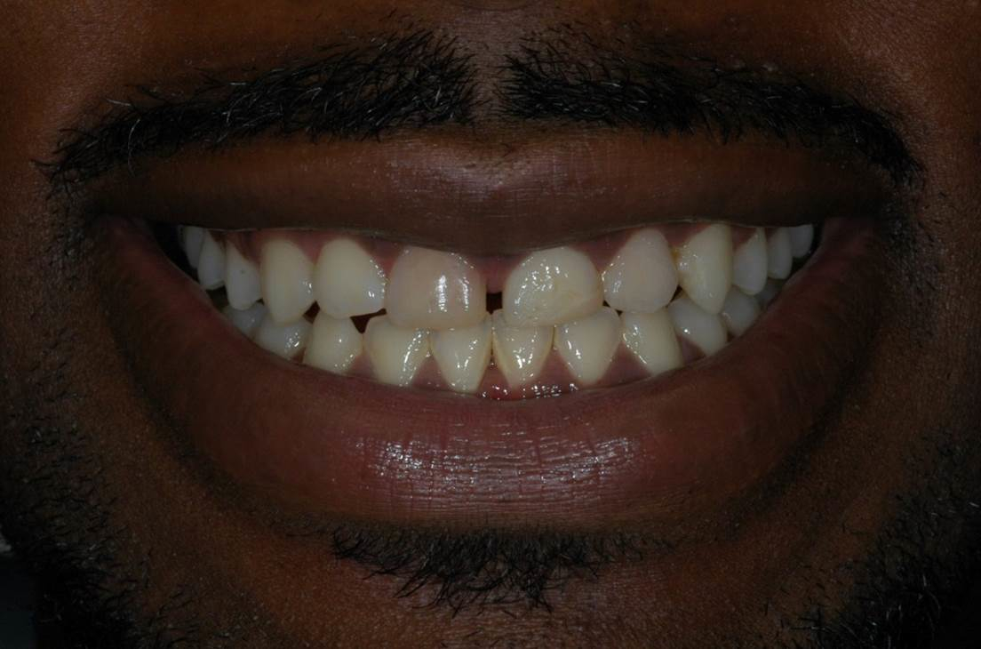 Crowns at Watergate Dental - Before
