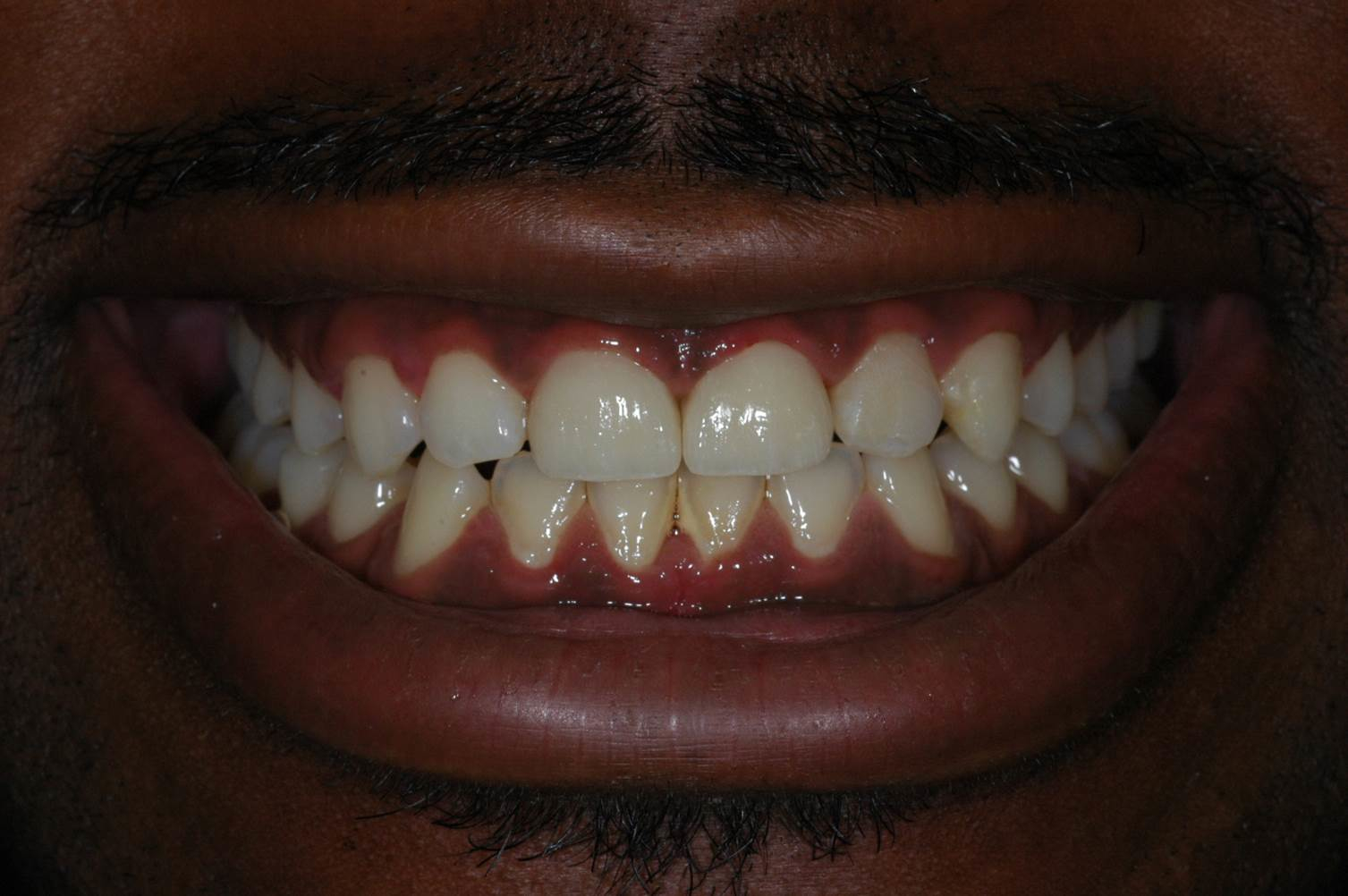 Crowns at Watergate Dental - After