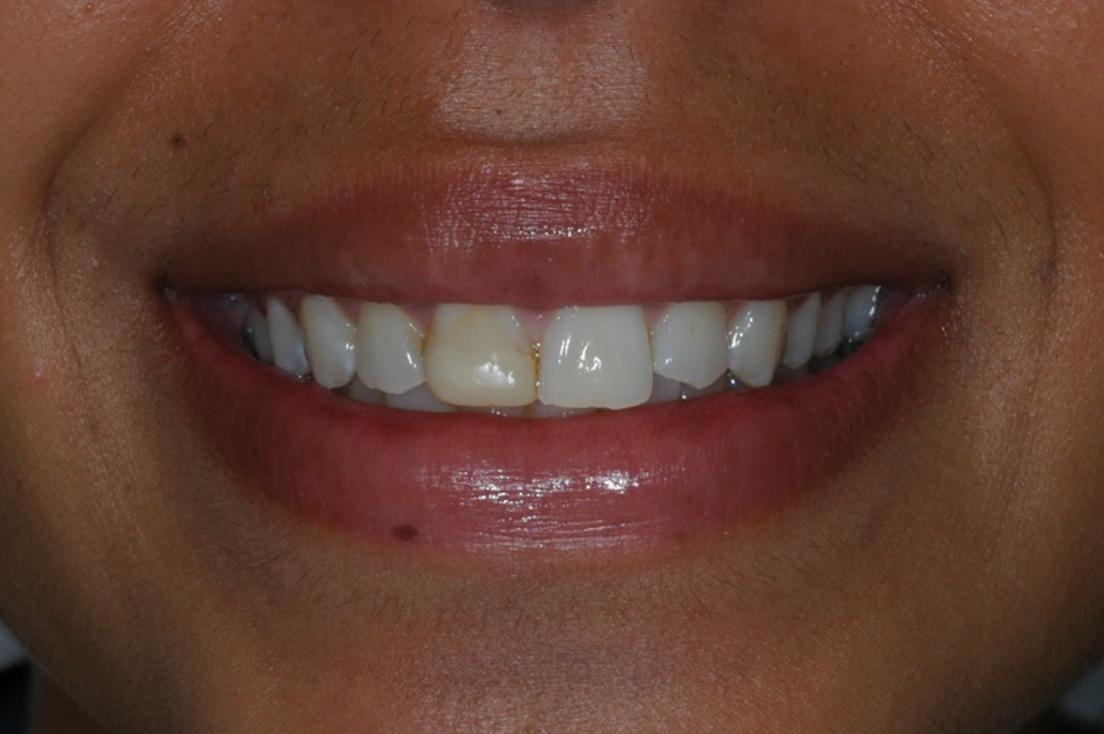 Crown at Watergate Dental - Before