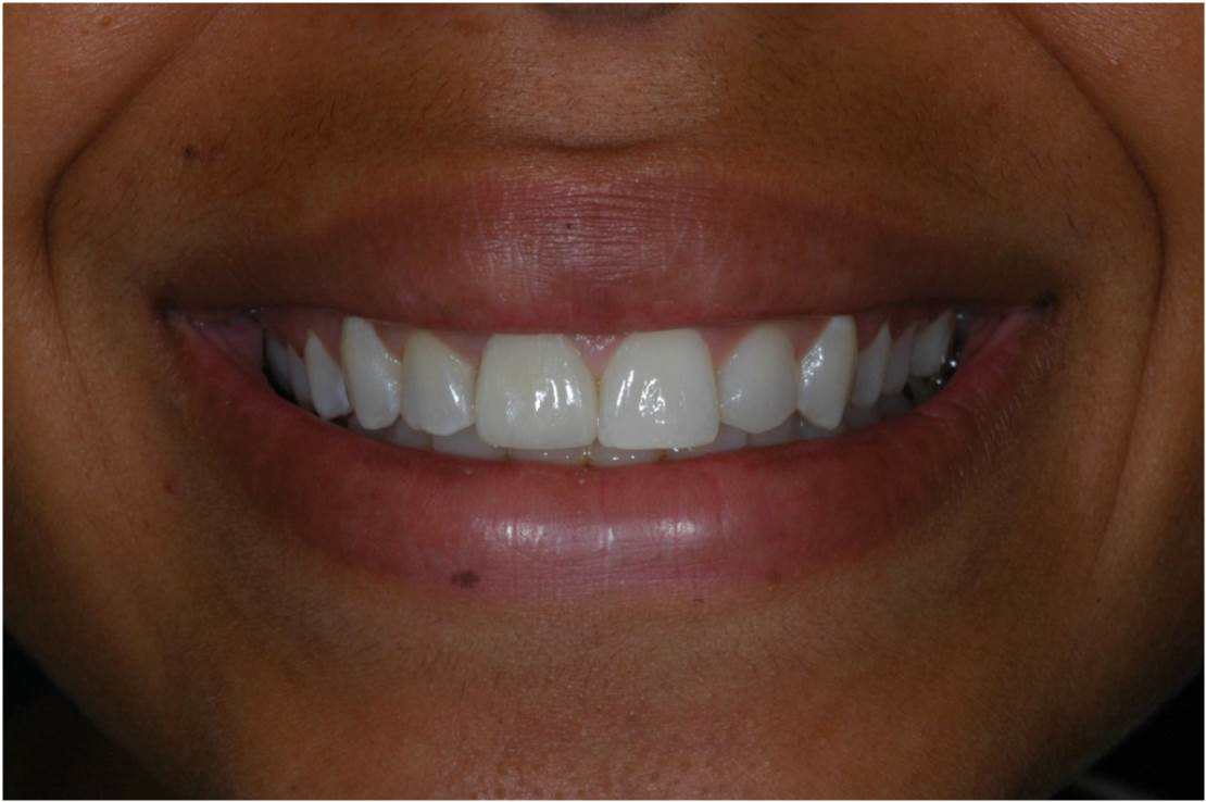 Crown at Watergate Dental - After