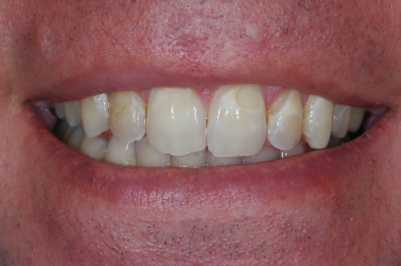 Cosmetic Bonding at Watergate Dental - Before