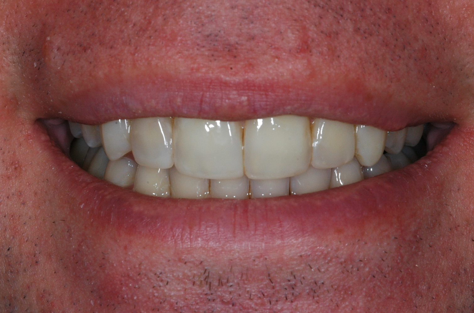 Cosmetic Bonding at Watergate Dental - After