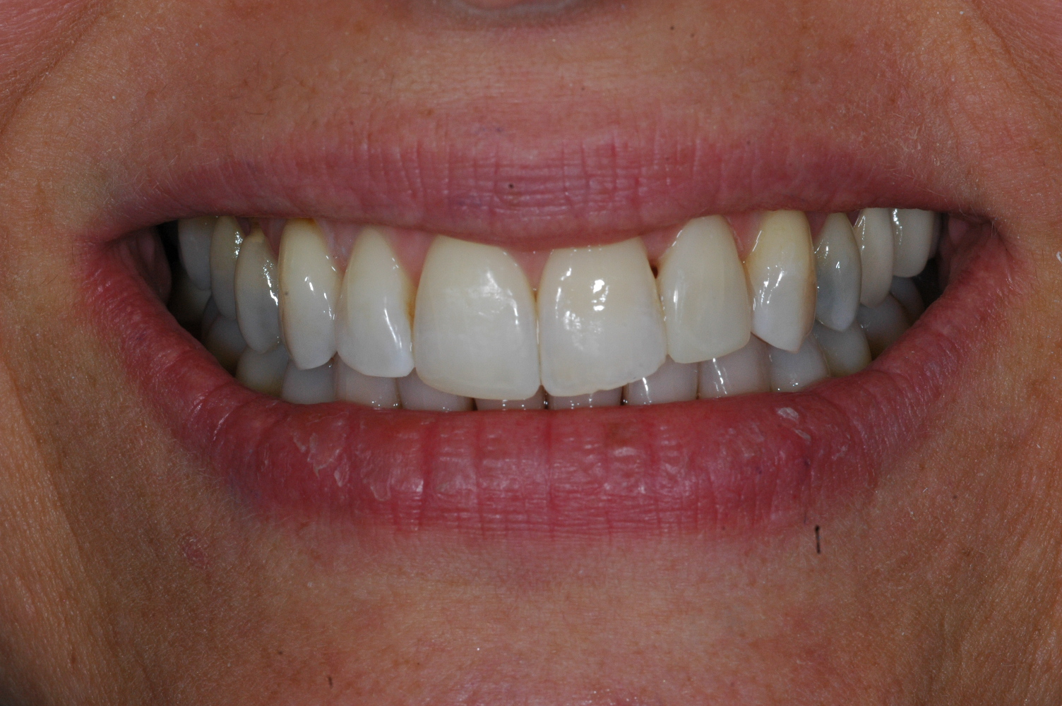 Cosmetic Bonding - After