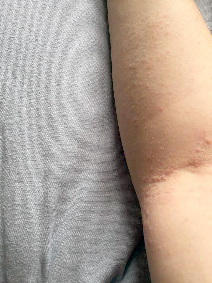 eczema.jpg