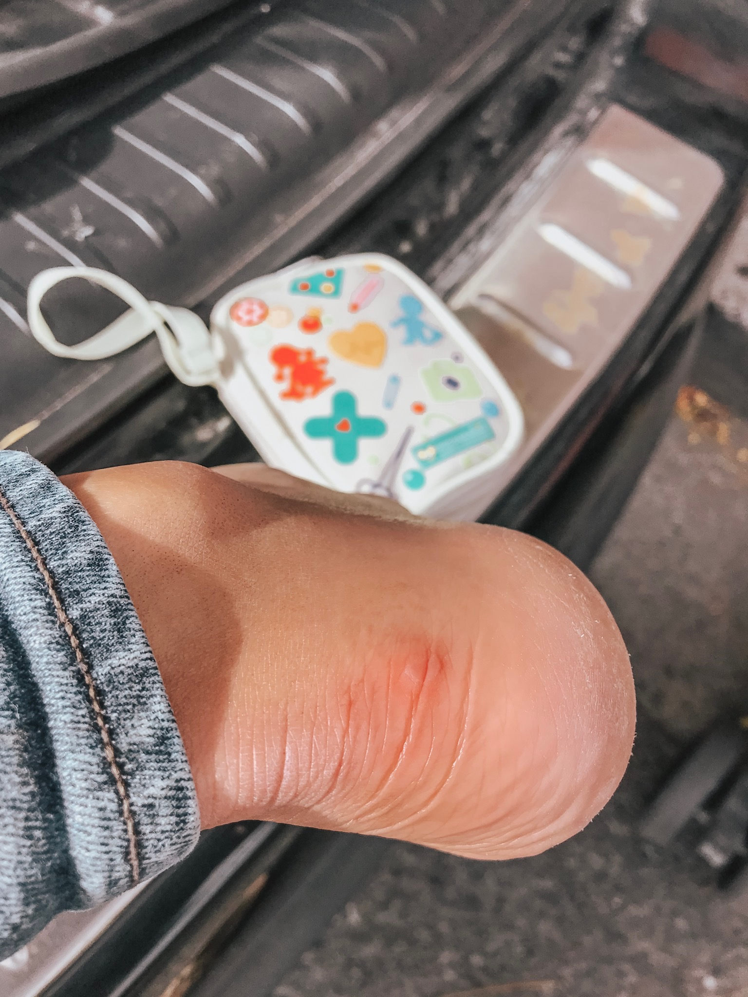 Holy Blisters — THANK GOODNESS we had some bandaids!