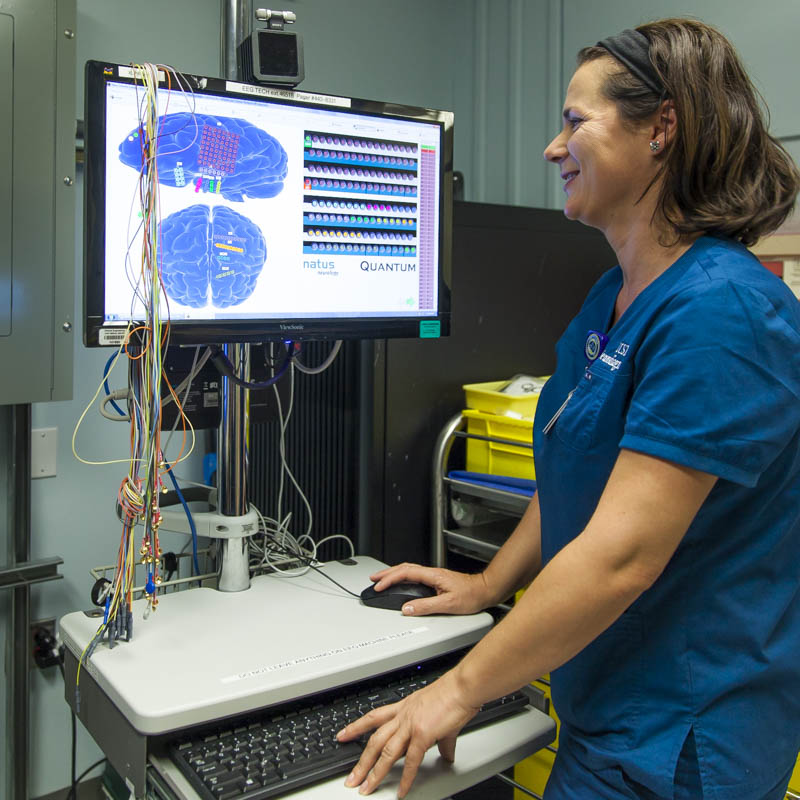 An electroencephalogram (EEG)