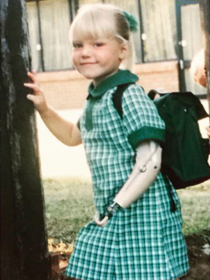 Jessica Smith wearing her prosthetic arm as a child. She stopped using it when she was eight years old