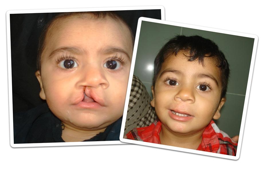 muhammad-riaz-charity-work-with-OPSA.jpg