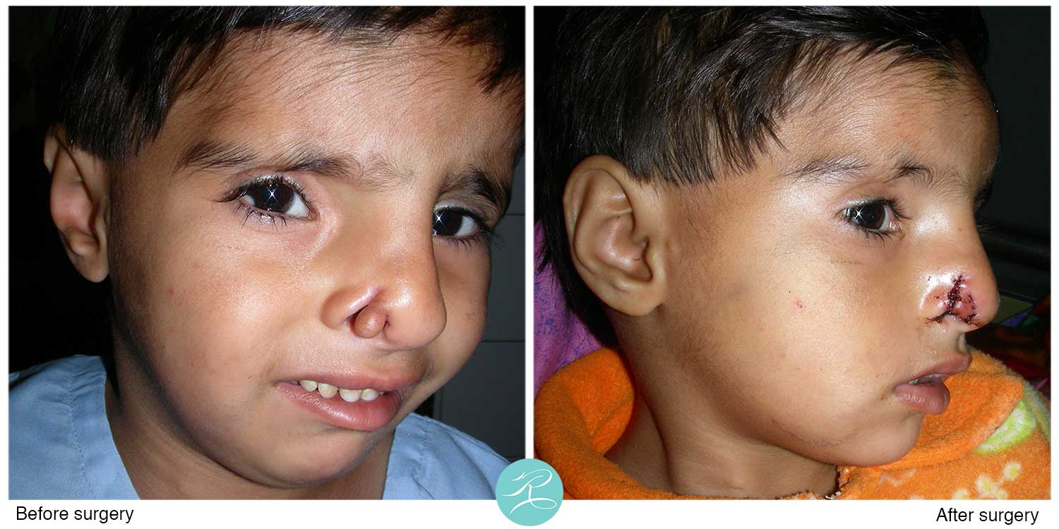 Cleft nose with a polyp. Polyp skin used for reconstruction