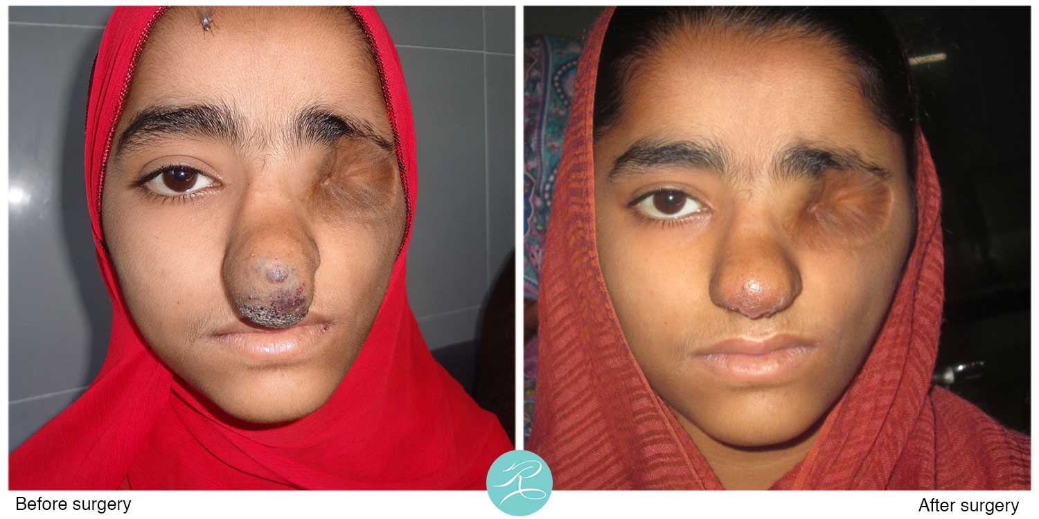 Young girl with vascular malformation of nose, three weeks after the operation, awaiting prosthetic eye to be arranged by OPSA