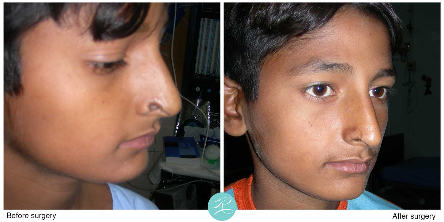 Nose defect reconstructed with composite graft from ear