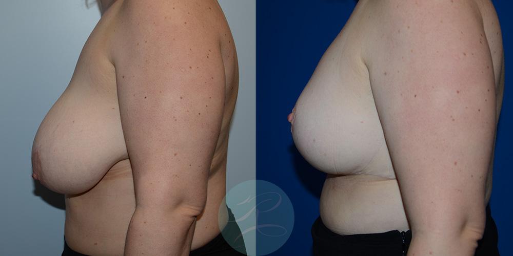 R-Breast-Reduction-2c.jpg