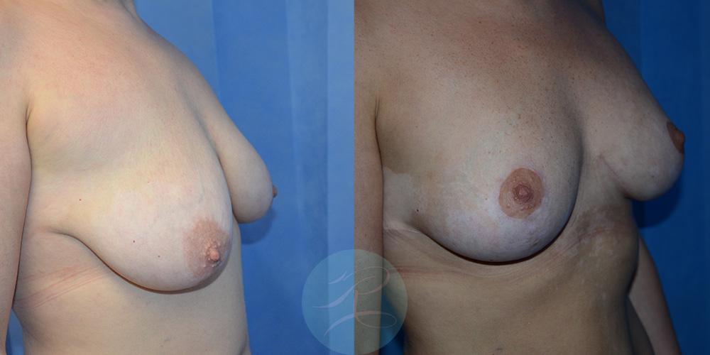 R-Breast-Uplift-2b.jpg