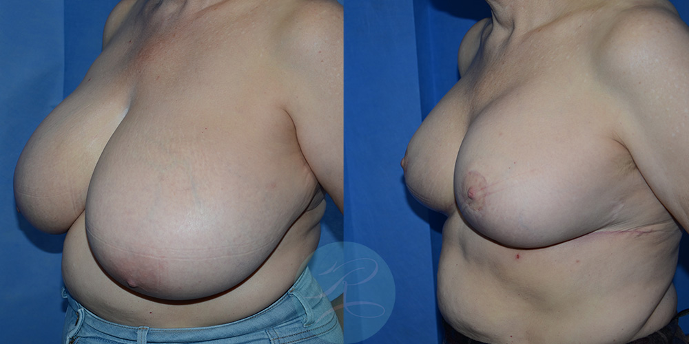 Before and post R Breast Reduction cosmetic surgery carried out at Mr Riaz's clinic at the Spire hospital in East Yorkshire.
