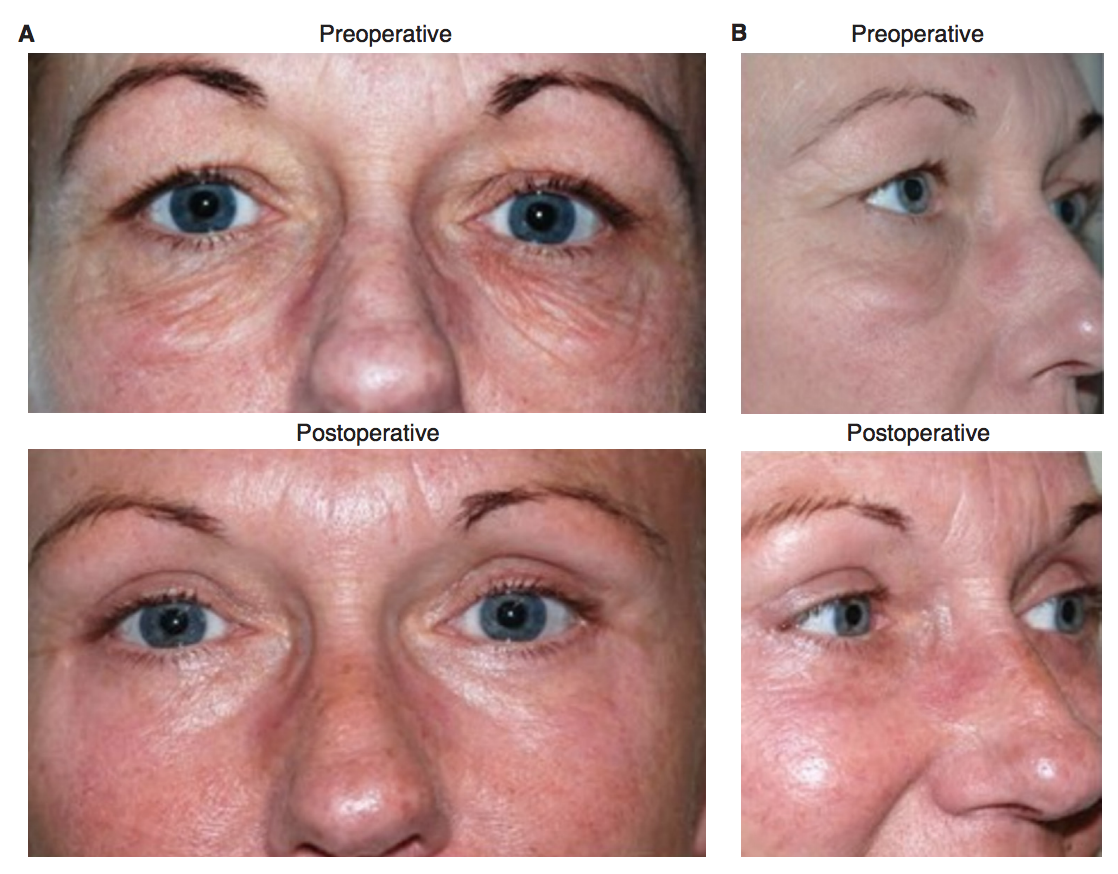 Postoperative outcomes. (A) Pre- and postoperative appearance (antero-posterior view); (B) pre- and postoperative appearance (lateral view)