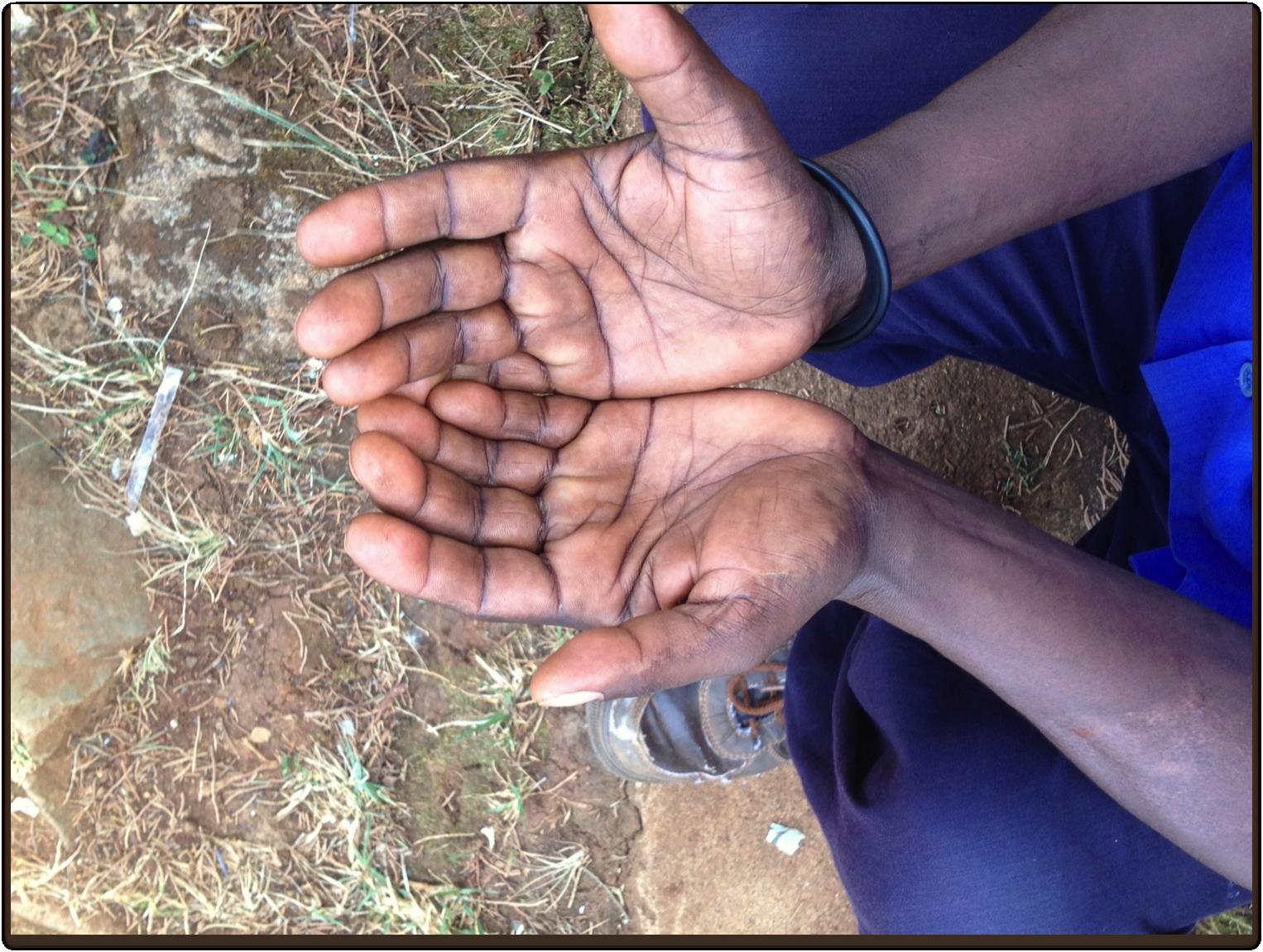 Hands of Telahun Atara, Coffee Farmer, Yirgacheffe Farmer's Cooperative Union, Photo by Simran Sethi