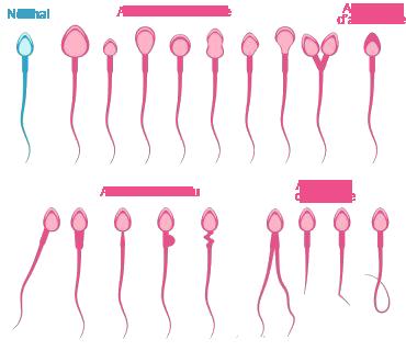 anomalie du spermatozoide.png