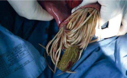 tapeworm forte