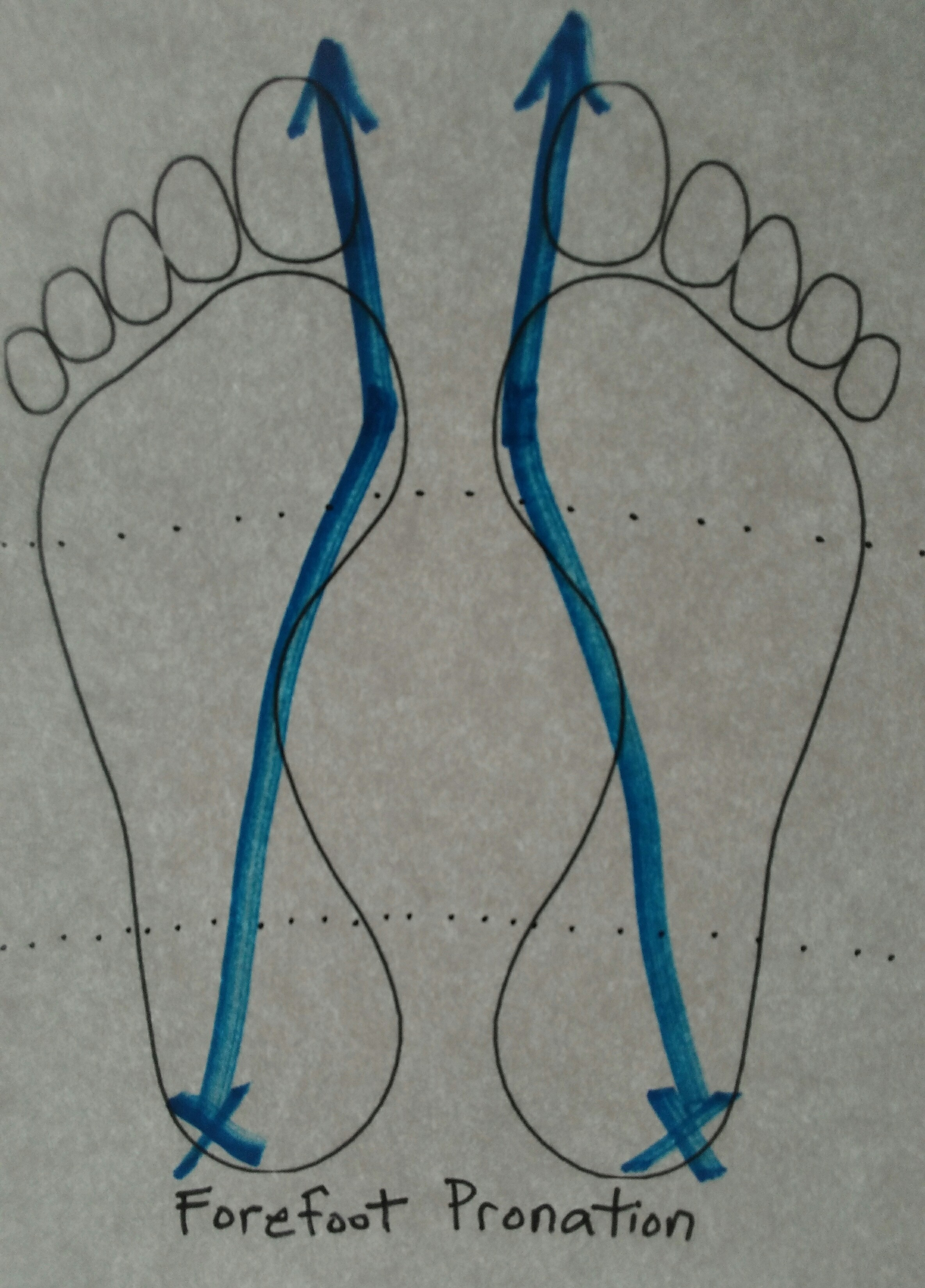 forefoot pronation