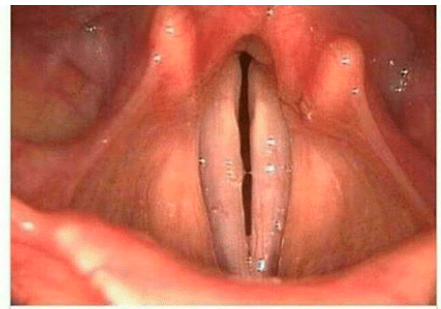 This is an image of your vocal folds. Look familiar?